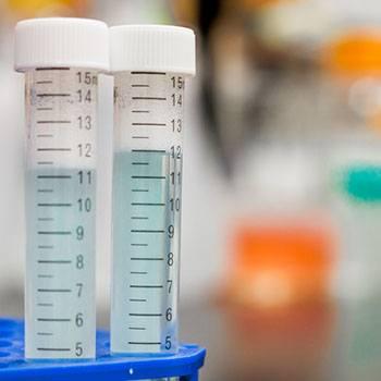 Actualización en Estudios de Bioquímica en el Laboratorio Clínico